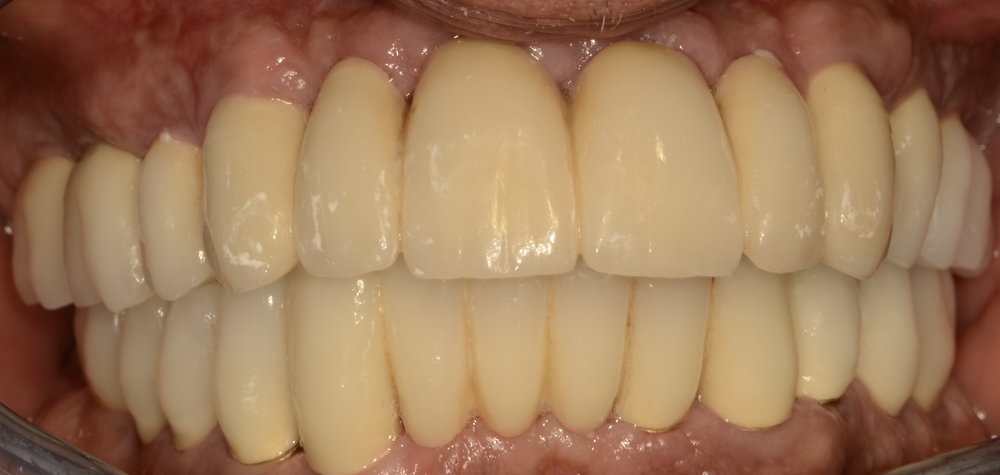 All implant supported crown work changing lives forever after 2