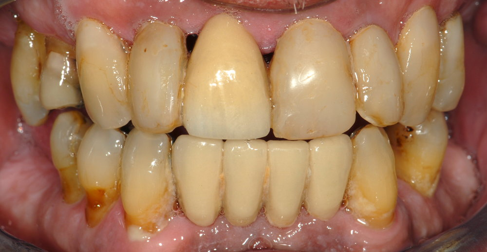 Hopeless teeth before 1