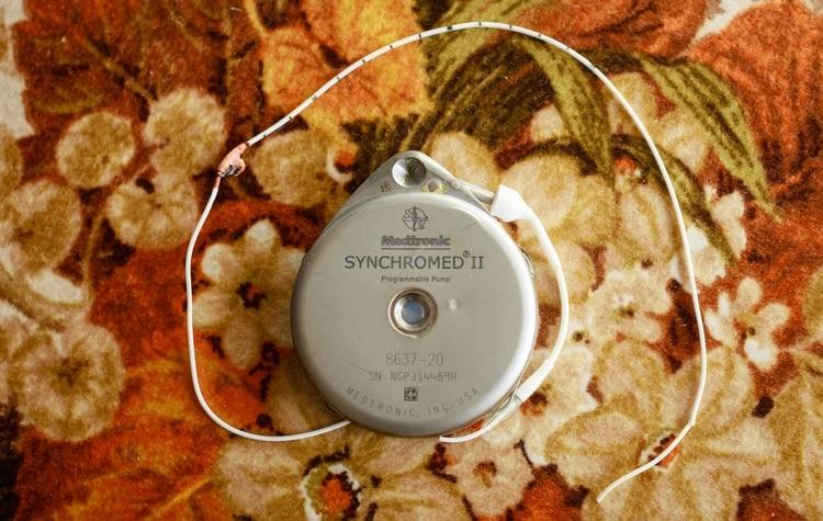Črpalka Synchromed II. Foto: ICIJ