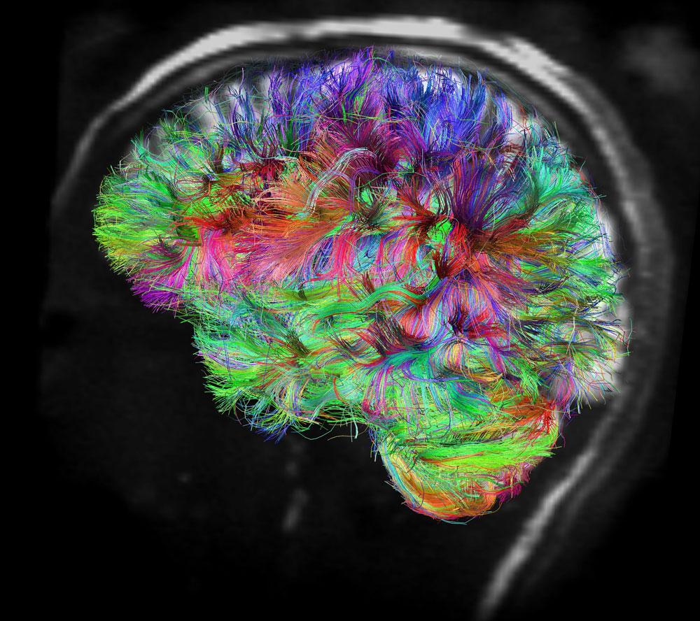 BrainBeautiful.jpg