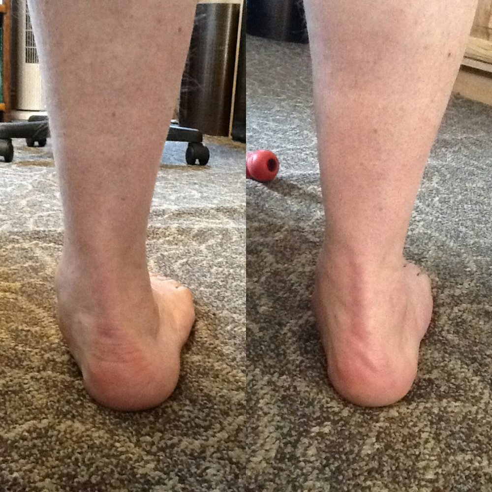 foot comparison.jpg
