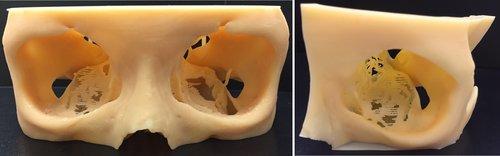 (左)3D列印手術模型;(右)鏡像輸出對側眼窩骨