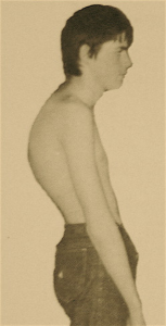 altered shoulders and t-spine