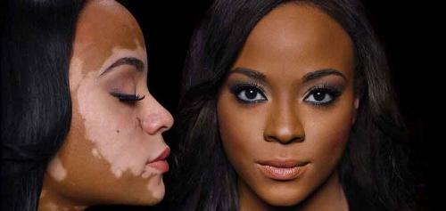 Dermablend-Camouflage-Makeup-2.jpg