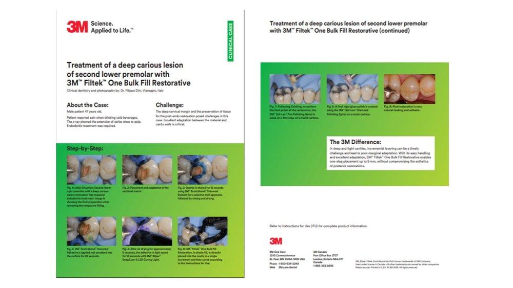 https://multimedia.3m.com/mws/media/1318521O/clinical-case-by-dr-dini.pdf