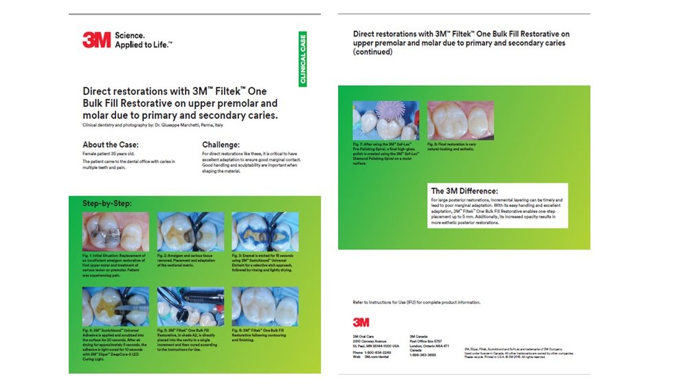 https://multimedia.3m.com/mws/media/1318527O/clinical-case-by-dr-marchetti.pdf