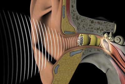 American-image-lyric-hearing-aid.jpg