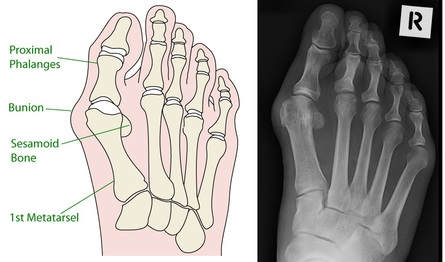 Bones were forced to create the form of the shoe.  Muscles can move bones to a more functional position