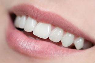 Gad_White_Fillings_foto_30112953_BB.jpg