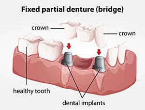 Gad_dental_bridge_foto_47909566_BB.jpg