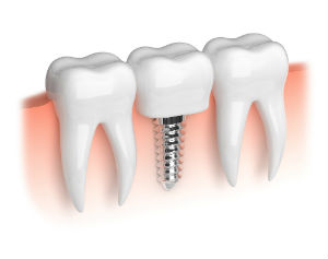 Gad_implants_foto_79782158_BB.jpg