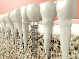 Gad_Dental_Implants_Foto_52499016_BB.jpg