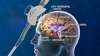 NeuroStar-MOA-Illustration.jpg