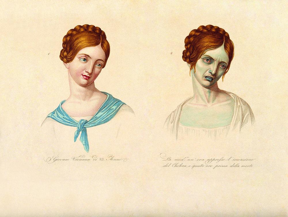 1832 - Cholera Epidemic