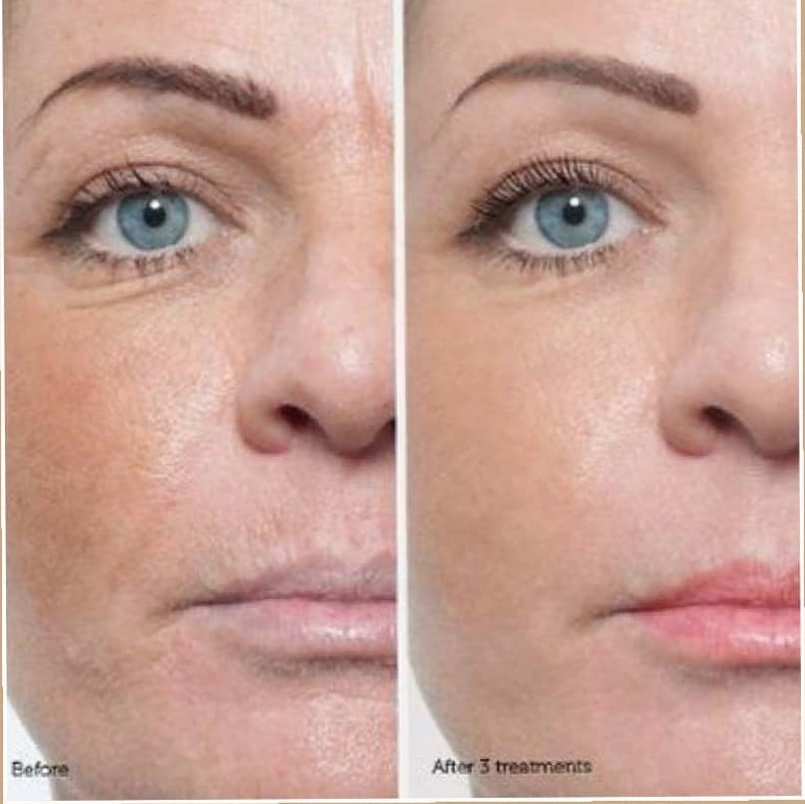 See Results - Just look at the results you can achieve.  Treat yourself to this amazing procedure today!!
