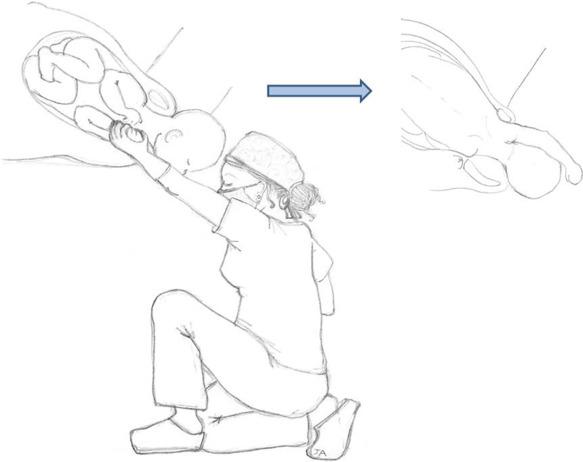 dystocie des épaules accouchement.jpg