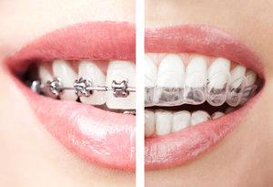 oatley-family-dental-invisalign-braces.jpg