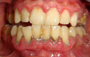 Periodontal-Disease-Oatley-Family-Dental