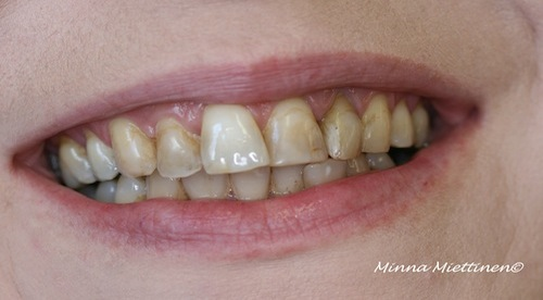 Teeth before veneers.