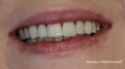 Teeth with veneers.
