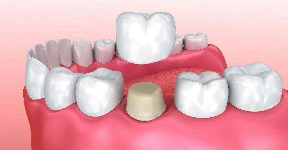 dental_crown_indications_sm.jpg