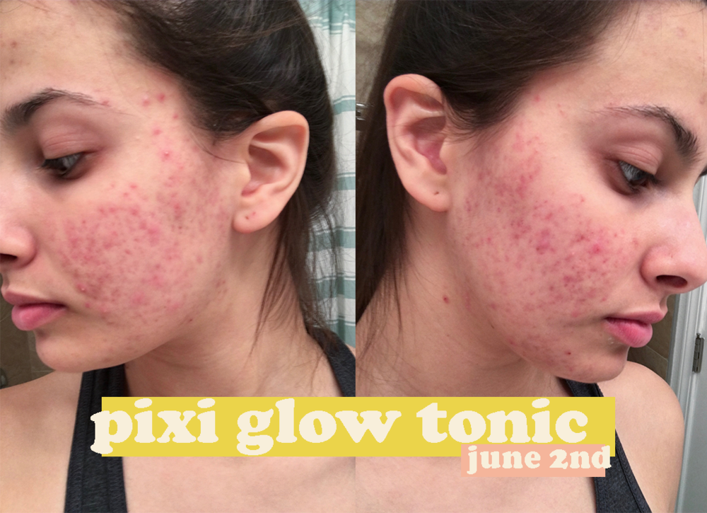 pixi glow tonic results.png