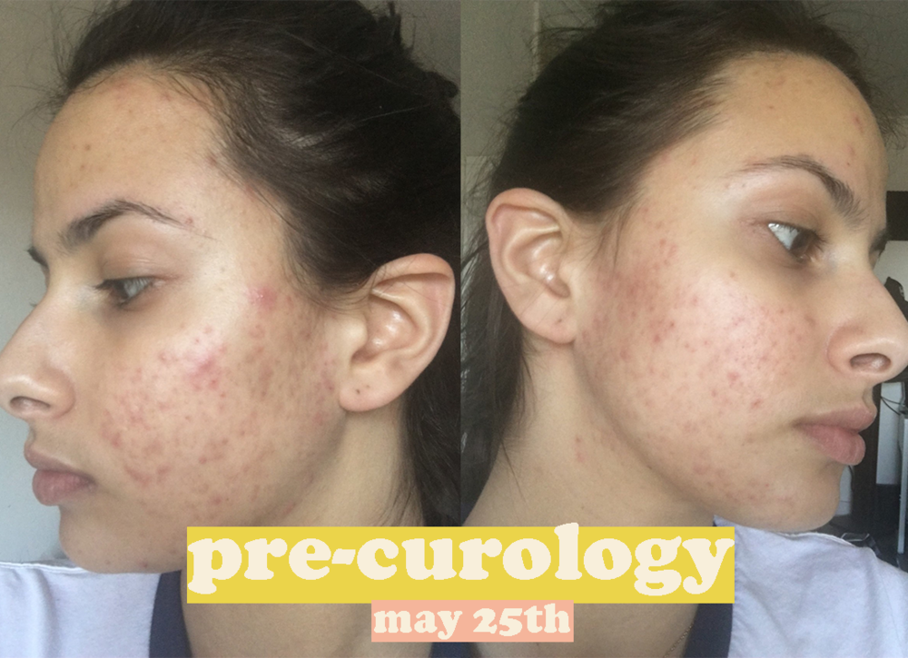 acne photo before curology.png