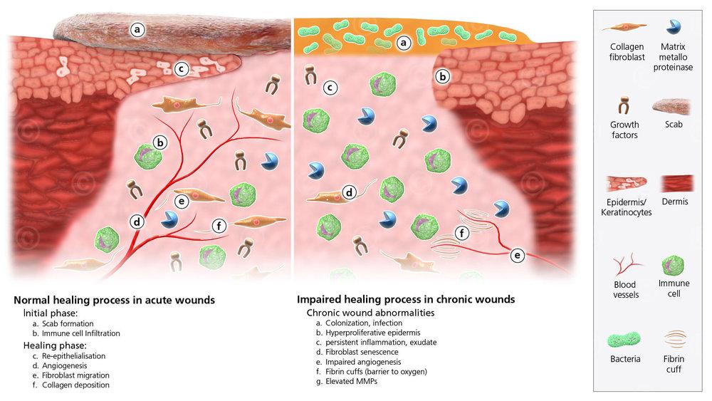 acute-vs-chronic-wound-big.jpg
