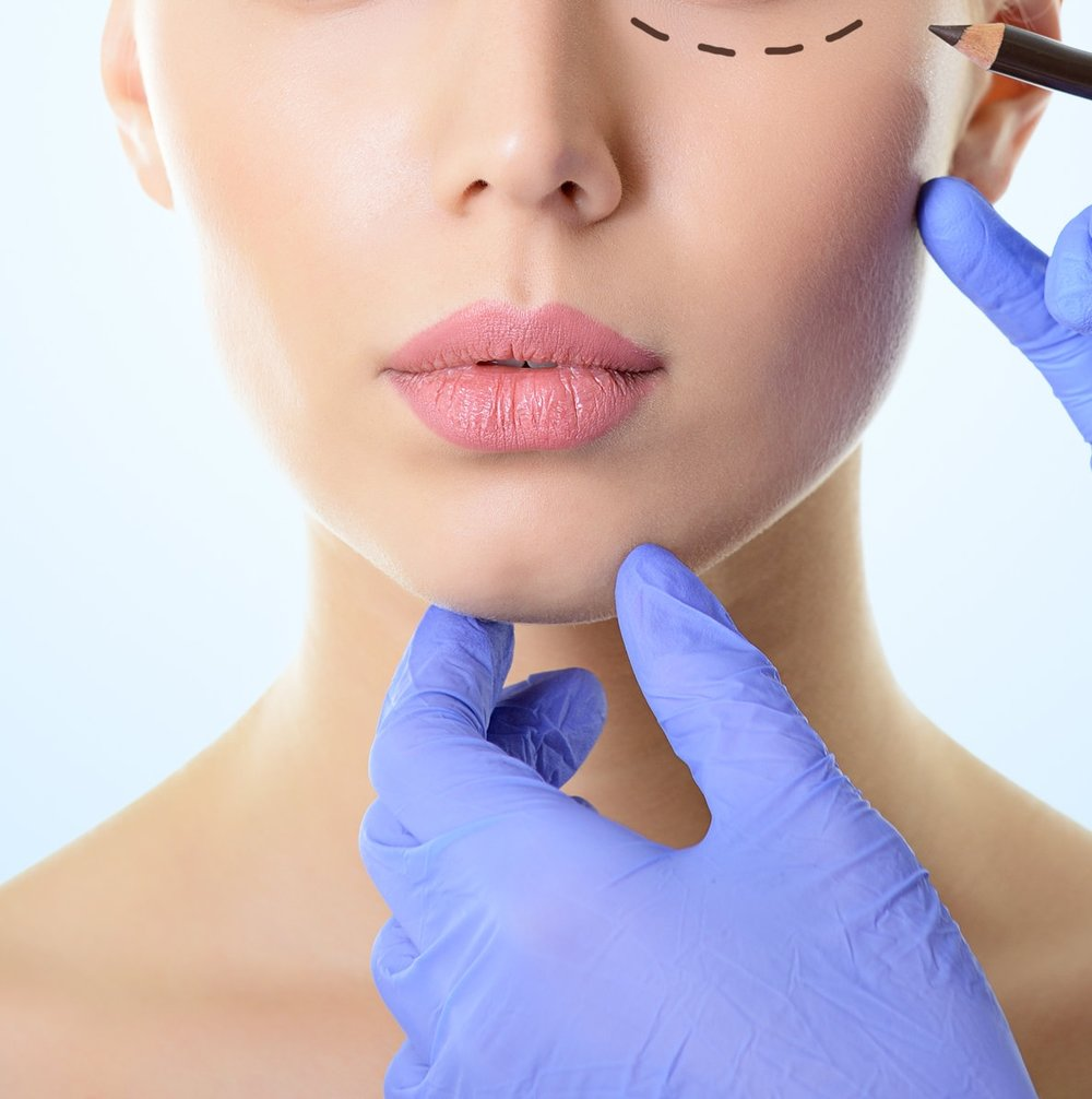 Scar Revision - Scars can result from any number of reasons including injury, previous surgery or acne. Dr. Demetri uses his expertise to determine which technique would be recommended for the specific type and placement of scar.Surgery to modify or conceal the scar or various laser and cutaneous resurfacing techniques may be recommended.