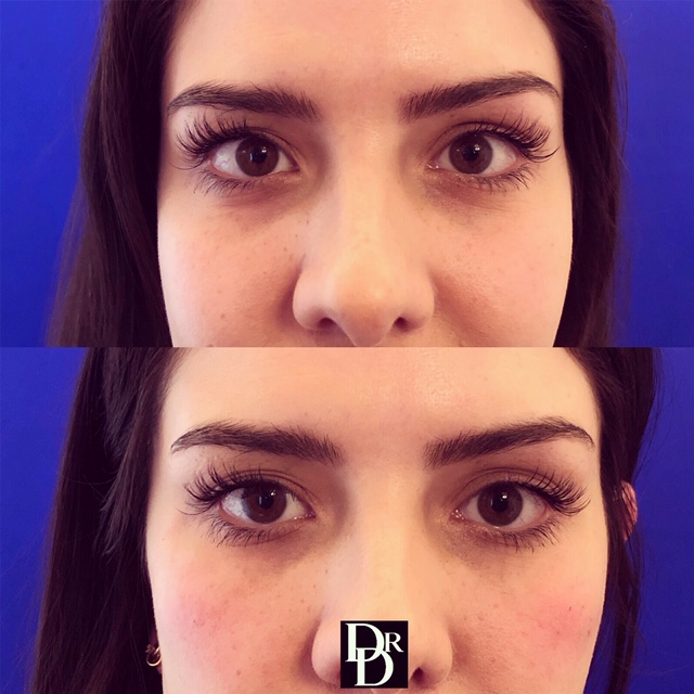 eyefiller13.JPG
