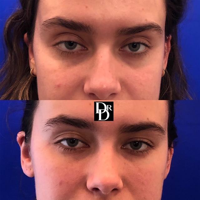 Eyefiller16.JPG