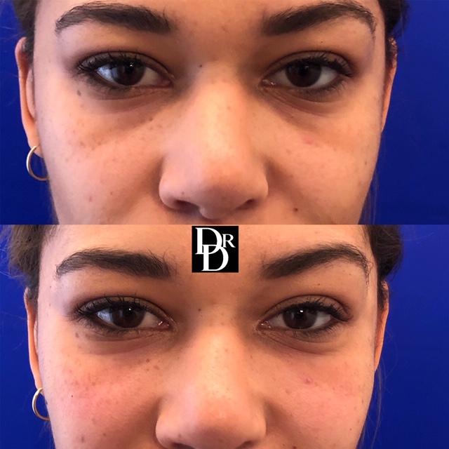 eyefiller18.JPG