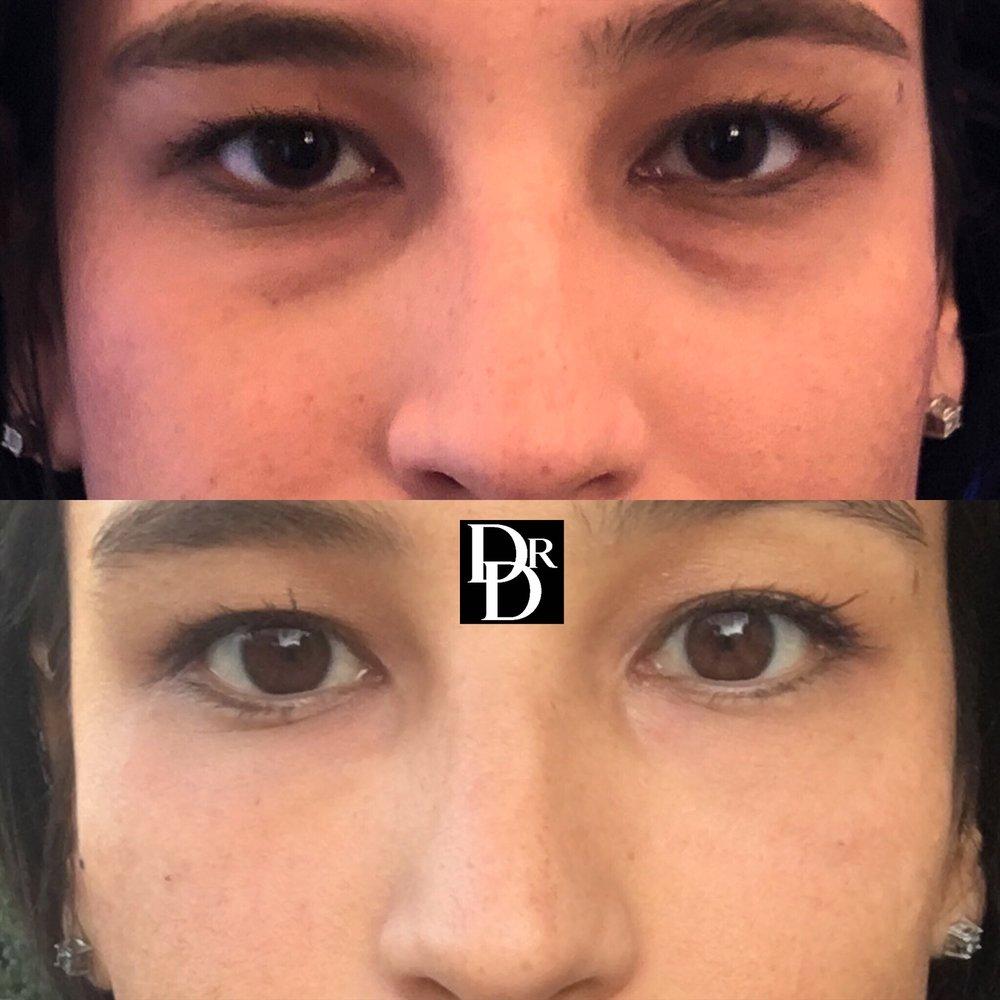 eyefiller20.JPG