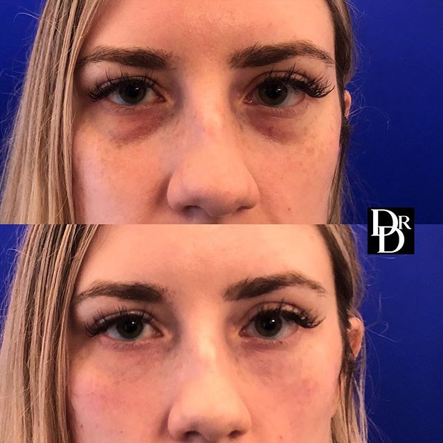 #Restylane was used to help rejuvenate this young patient's undereyes. She looks so much more refreshed & feels confident not having to wear cover all the time!