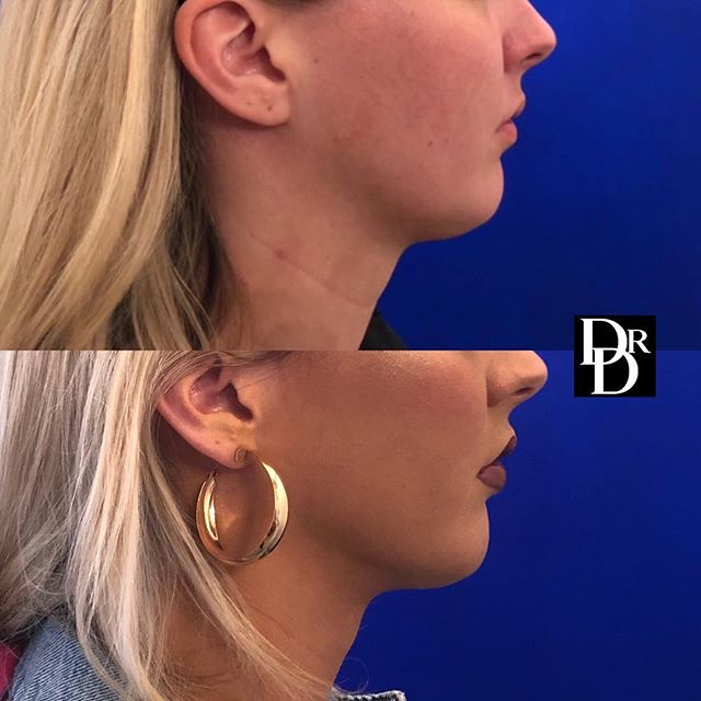 This pretty young patient desired a stronger jawline. Despite healthy diet and exercise, face and neck fat can be tough to get rid of! So instead I performed neck #liposuction to enhance her jawline and sharpen the angle under her chin. She still looks like herself but now feels more confident!