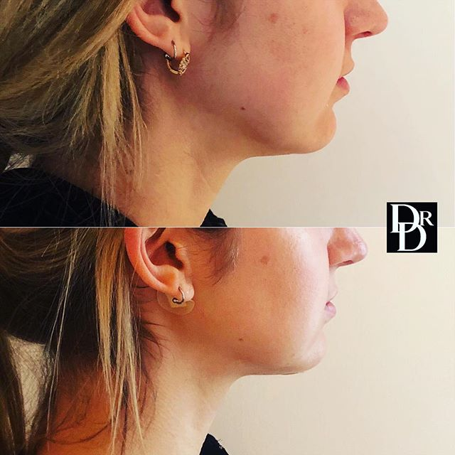 Check out the sharper definition along this beautiful patient's jawline! She underwent neck #liposuction which is a procedure done in less than a hour & under local anesthesia. She's only 1 week out and will continue to look even better!