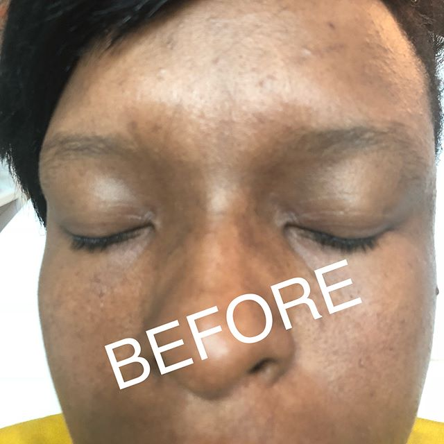 "Transforming Brows with Brow Tint🤗 ▪️Brow Tint last up to 2 weeks ▪️Outlasts #makeup Fill but not permanent like #tattoo or #microblading ▪️Perfect for ladies On-The-Go ▪️Gives the Brow a fuller Appearance ▪️Full Coverage for resistant gray hair ▪️No pain or downtime ▪️Click the ""Book"" tab in my bio for all your hair removal needs🤗 ******************************* 💕 💕 💕 💕 💕 💕 💕 #TinaDVon #raleighevents #raleighblogger #raleighmassage #raleighmua #raleighlashes #estheticianlife #Eyebrows #HairRemoval #raleighhairstylist #waxspecialist #Esthetician #RaleighEsthetician #NC #durhamhairstylist #EyebrowsonFleek #raleighbrows  #durhambrows #Brows #browwaxing #waxingstudio #Raleighbrows #BrowBoss #browtint #WaxSpecialist #Durham"
