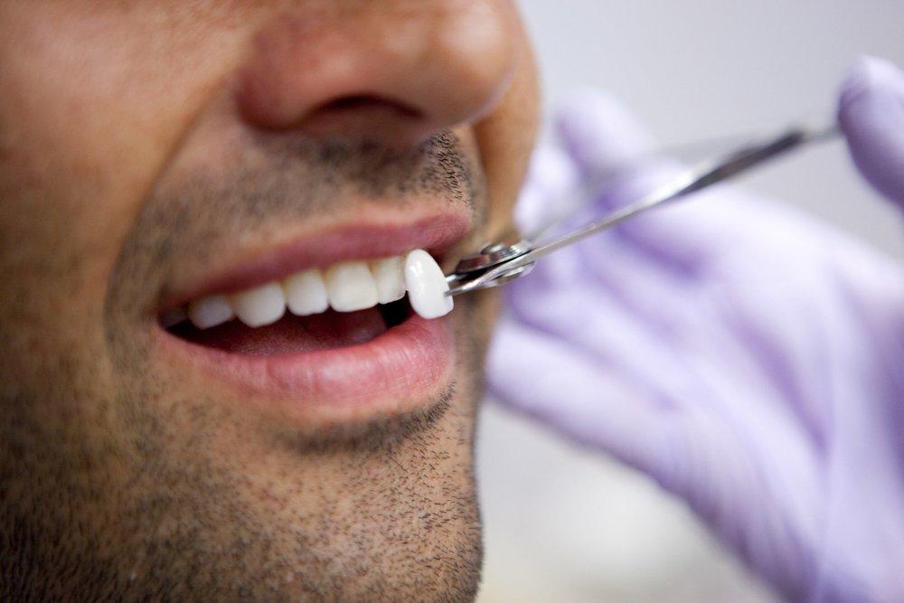 dental-veneers-min.jpg
