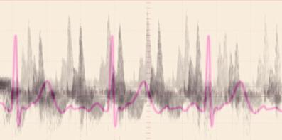 heartbeat recording for website.jpg
