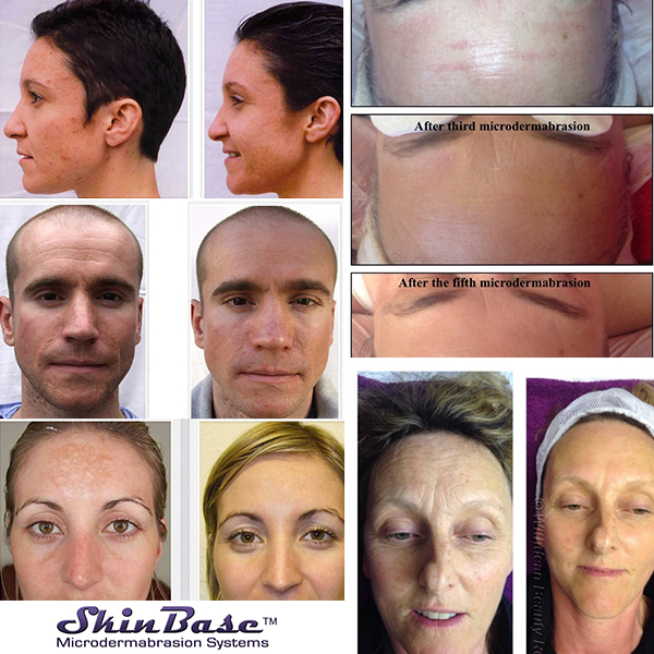Before and after shots - skinbase.jpg