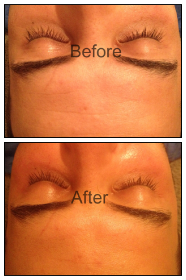 Charlie Codd_client before and after 1 treatment.jpg