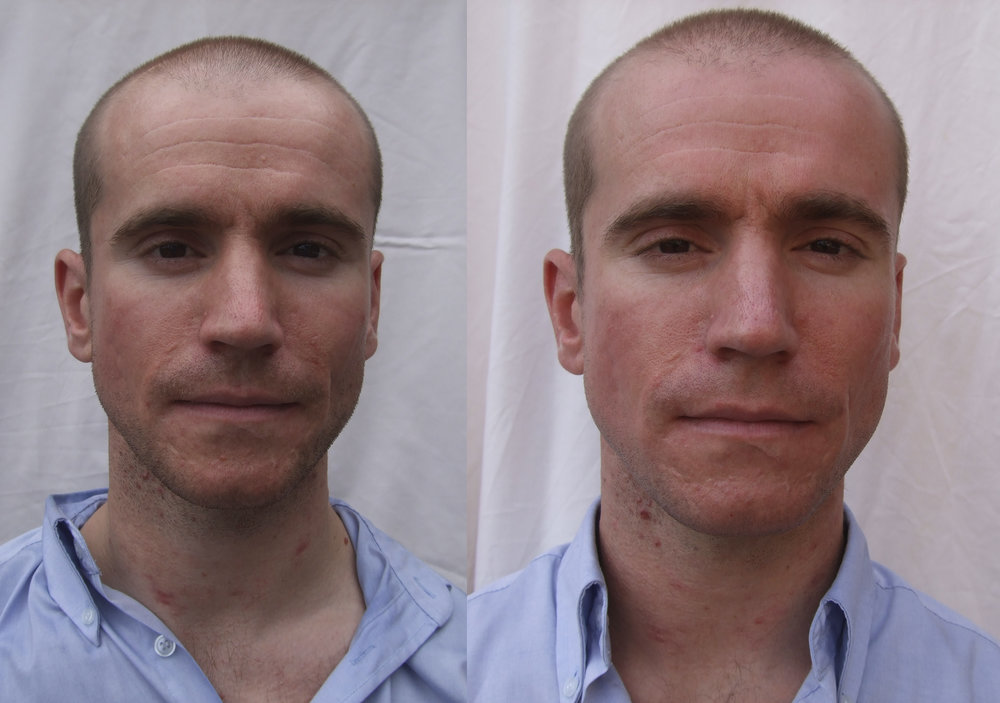 oliver Before and afters 4.jpg