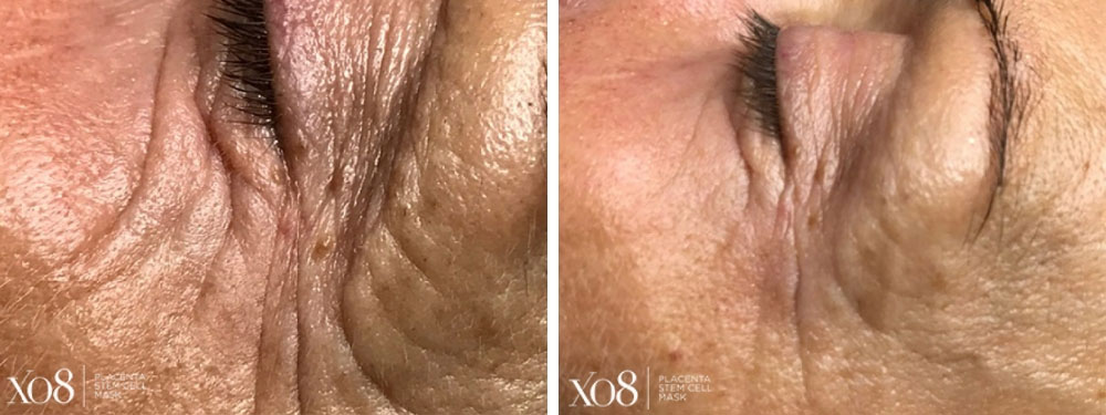 1 Hour Post XO8 Placenta Stem Cell Mask Treatment