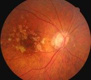 Renton+Vision+Clinic+macular+Degeneration.jpg