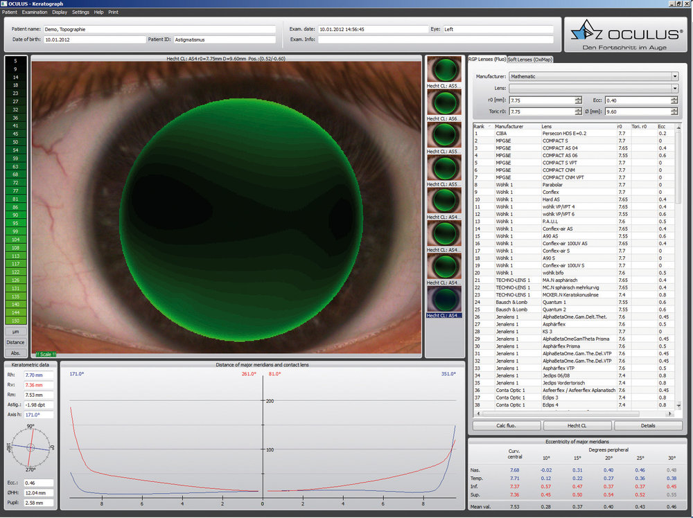 Specialty Contact Lens Fitting Software