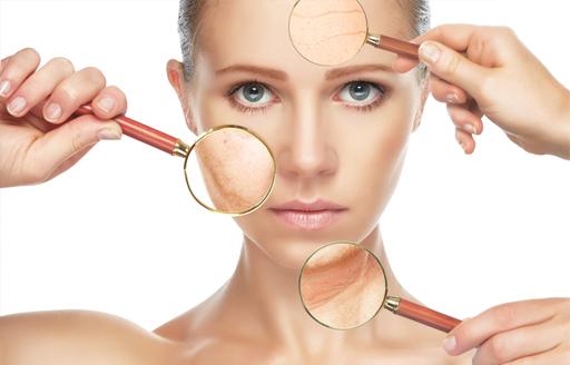 Skin Aging -