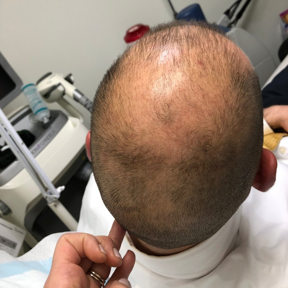 Step 1. Assessing the scalp