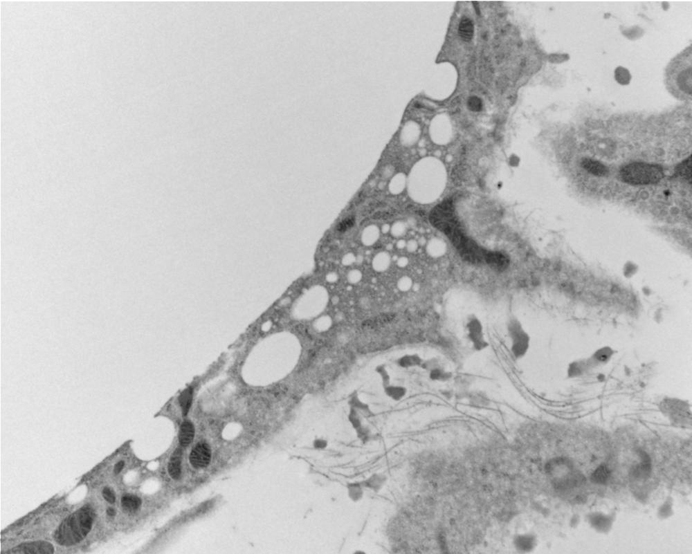 TEM of adipocyte.png
