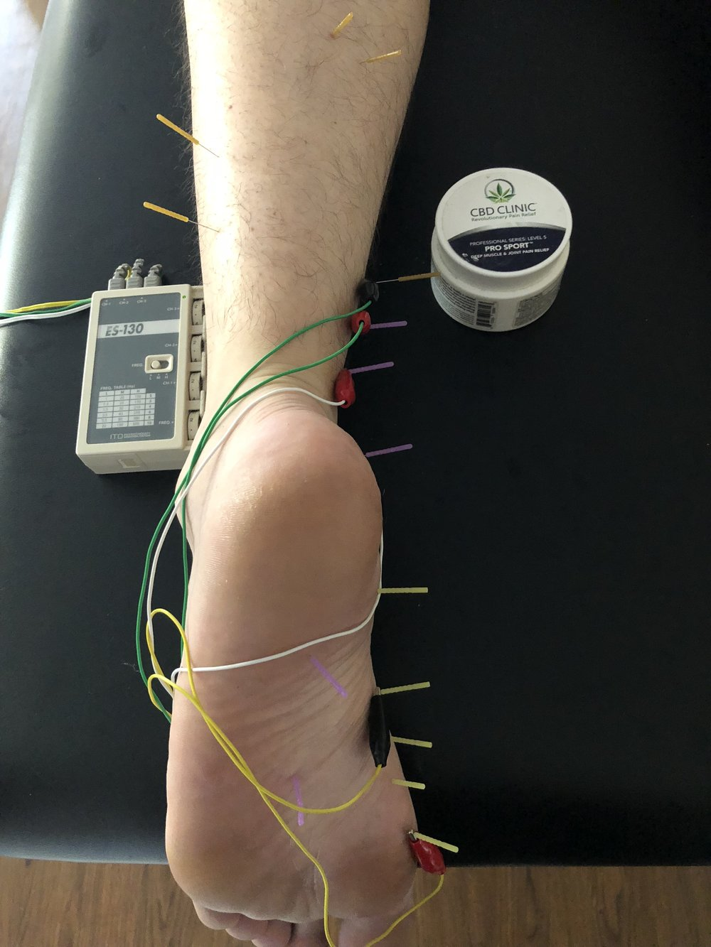 Dry Needling - According to the APTA, Dry needling involves the use of a thin filiform needle that penetrates the skin and stimulates underlying myofascial trigger points and muscular and connective tissues for the management of neuro-musculoskeletal pain and movement impairments.Dr. Kevin Landreneau received his training in Dry Needling from the Spinal Manipulation Institute in 2018. Certification included the completion of two 27 hour long courses that each ended with testing to ensure proficiency.Dry needling is a popular treatment option at Landreneau Physiotherapy and we have seen great results with this technique.