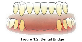 shineDentalDentalMissingTeethMultipleTeethDentalBridge.jpg